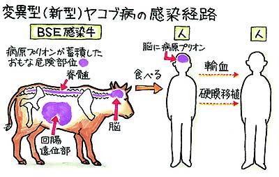 変異型ヤコブ病 原因と対策/BSE牛から感染 血液介して人から人にも