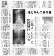 大腸ステント.jpg
