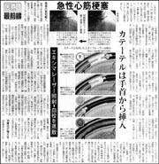 最前線・急性心筋梗塞.jpg